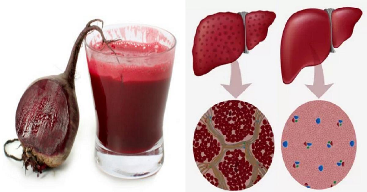 「肝臟」黑掉了嗎?速吃「6大食物」清肝毒、提振肝功能,不當「癌症」候選人! 每日健康Health